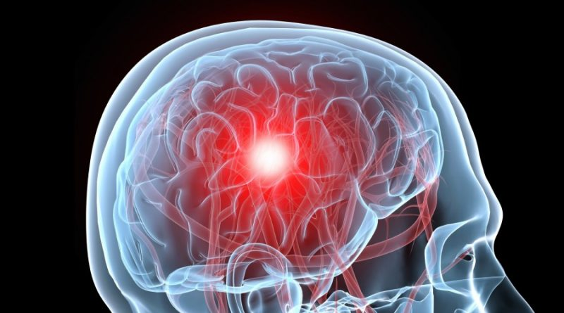 COVID and the brain: researchers zero in on how damage occurs